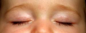 A felnőttkori dadogás is gyógyítható hipnózis terápiával
